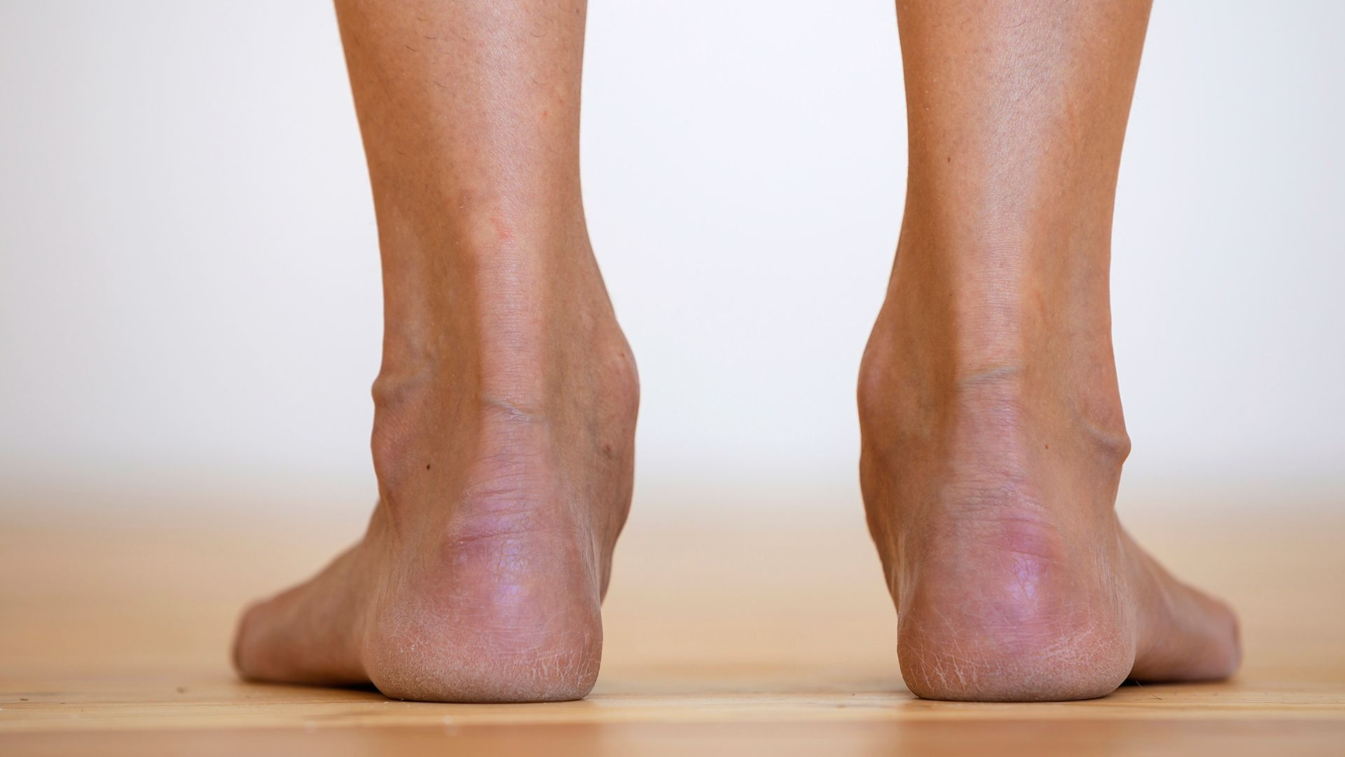 Heel Pain Treatment Options